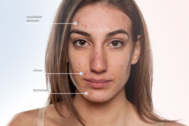 acne-outbreak-causes